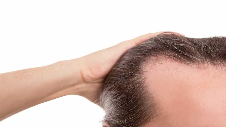 با نخوردن این غذاها از ریزش مو جلوگیری کنید