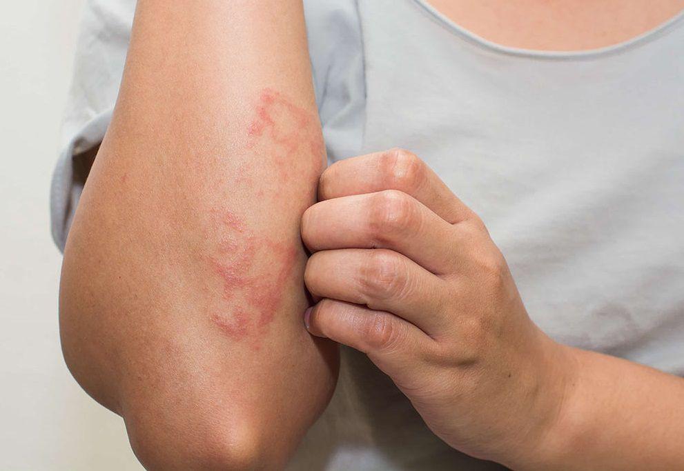 عوارض پوستی ویروس کرونا را بشناسید
