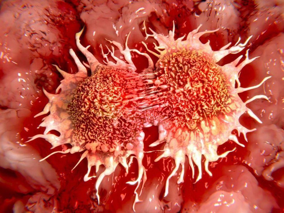 روشی نوین برای کشف صد در صدی سرطان دهانه رحم