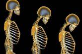 پوکی استخوان چه نشانههایی دارد؟