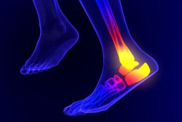دلایل بروز درد در پاشنه پس از ورزش چیست؟